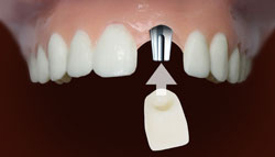 Order Dental Implants Services